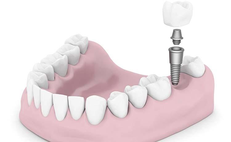 perito dentista - odontólogo